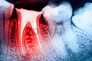 Full Obturation of Root Canal Systems On Teeth X-Ray