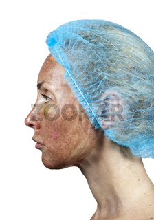 Cosmetology.Skin in the course of rejection after a deep chemical peeling