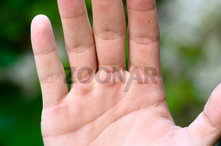 Hand with callus