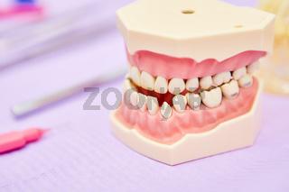 Zahnfehlstellung an einem Gebiss Modell