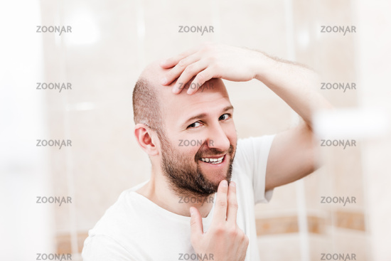 Bald man looking mirror at head baldness and hair loss