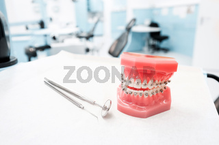 dental model with braces - Teeth orthodontic dental model with dental braces in dentist clinic -