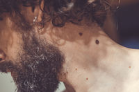 Melanocytic nevus, some of them dyplastic or atypical, on a caucasian man of 37 years old from Spain