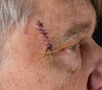 Side view of senior man after MOHS surgery to remove skin cancer stitches in wound