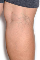 Varicose spider veins on womans legs