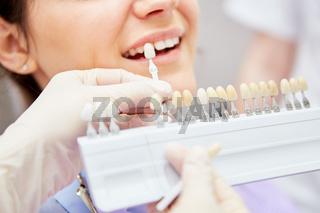 Auswahl der richtigen Zahnfarbe beim Bleaching