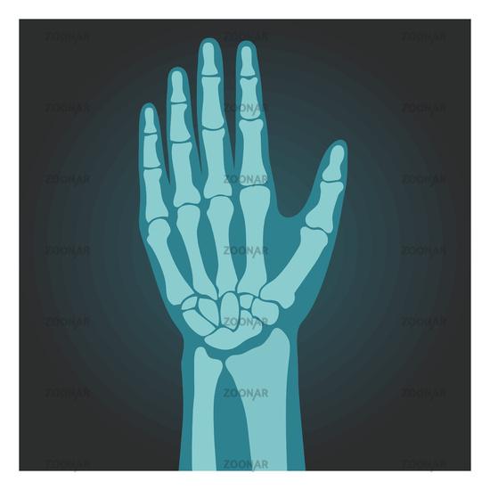 X-ray shot of wrist, human body, bones of hand, radiography, vector illustration.