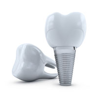 implant and  molar