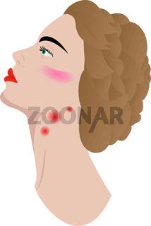 swollen lymph nodes.eps