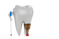 Tooth with Prodese and Crutch, 3D Illustration