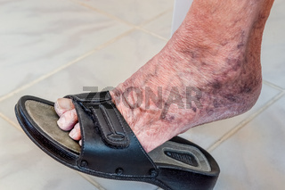 Old human foot with black slipper