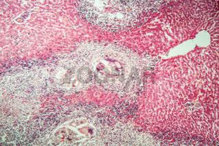 Rehbock mit Parasiten